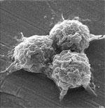 prokaryote- looks like three fuzzy gray balls stuck together