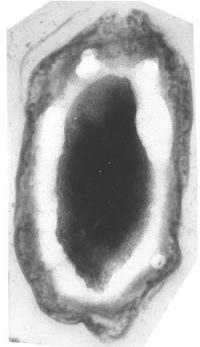 cell wall: a black oval surrounded by a white oval surrounded by a gray oval