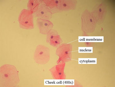human cheek cells - pink blobs with dark pink dots inside each one on a yellow background