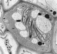microscope view of a plant cell. An irregular gray shape with big white spots, black dots, and black strings in it