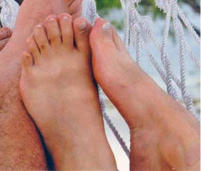 white person's feet with six toes on each foot