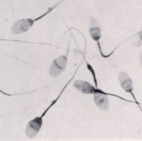 sperm cells: gray oval translucent cells with long thin tails (flagella)