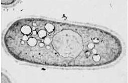 yeast cell - a gray oval with smaller circles inside it