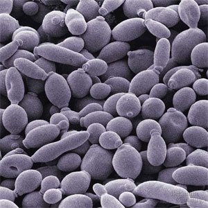 Yeast cells budding: A lot of oval gray balls with little bumps sticking out of them