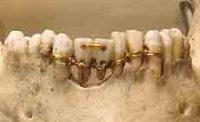 Early Egyptian dental bridge (Gordon Museum)