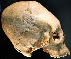 Skull of a person from northern Europe, ca. 500 AD (now in Landesmuseum Württemberg)