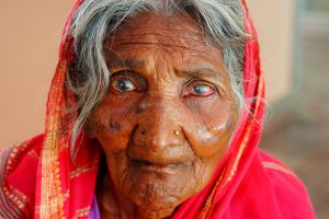 older Indian woman with gray hair and a red sari. Her eyes are cloudy bluish-white