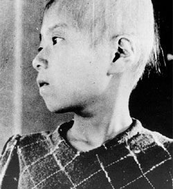 A Japanese girl who lost her hair from radiation sickness
