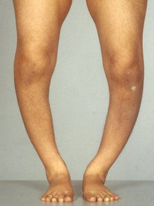 A person with rickets: their legs are bent outward at the knees