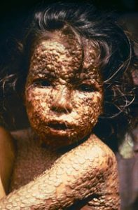 Child with smallpox (Bangladesh 1973)