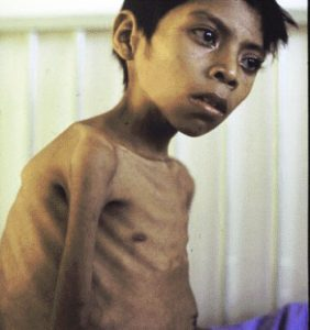 A brown-skinned boy with tuberculosis: a big chest, very skinny