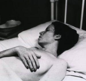 A white woman with typhus